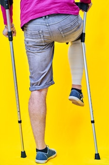 보라색 티셔츠 반바지와 목발로 뒤에서 한 남자의 다리를 클로즈업하고 한쪽 다리를 붕대를 감고 목발에 얹습니다.