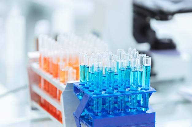 실험실의 테이블에 테스트와 함께 up.tubes를 닫습니다. 과학과 건강.