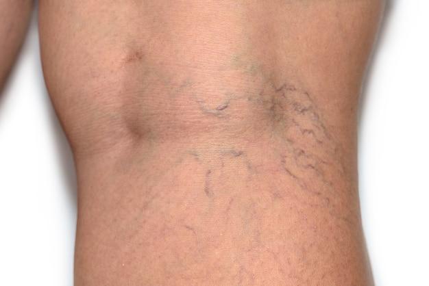 피부 사기꾼 다리에 정맥류 거미 정맥을 닫습니다, 혈관을 응고시킬 수있는 문제 혈전증, 혈관 및 정맥 질환, 흰색 배경에 의사 전에 건강 관리