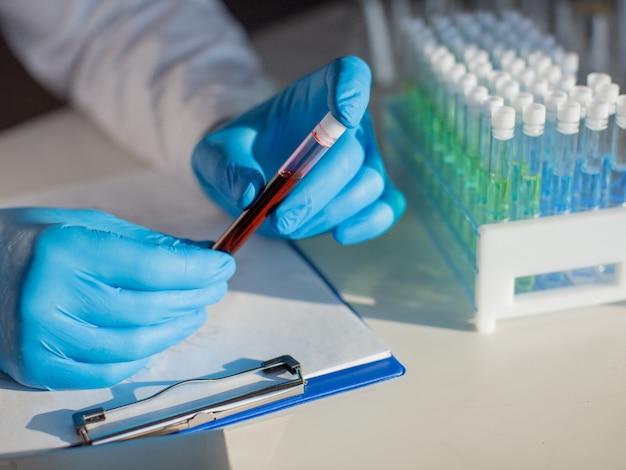感染した血液の試験管を持っている医師の手の拡大図。