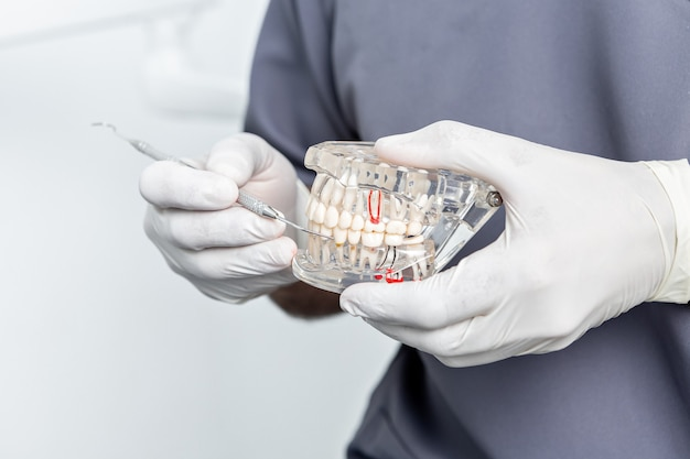 白い手袋を使用して歯科医の手で透明な歯科用金型の拡大図
