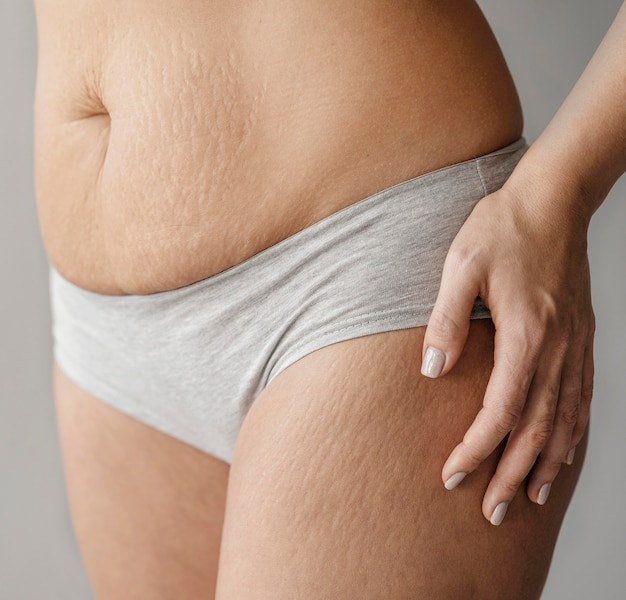 close up woman body with stretch marks 23 2148889277