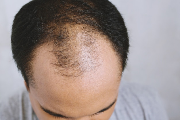 Close up young man concerned with serious hair loss. bald head thin and scalp and broken hair. concept healthcare