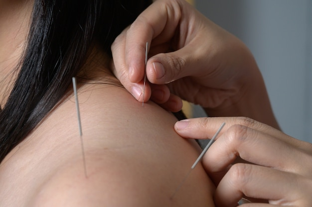 Close up young woman getting acupuncture treatment