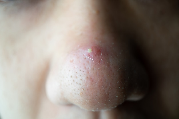 Closed-up many blackhead pimples and acne scars on the nose of an asian skin face