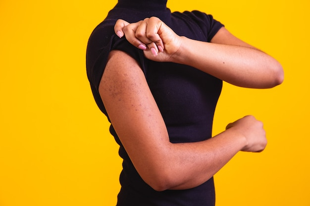 Closeup on arm of afro woman with allergy.