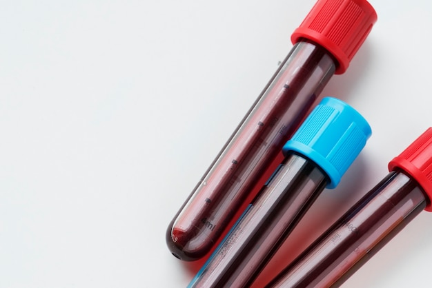 Closeup of blood tube test