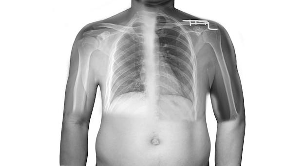 遠位鎖骨または鎖骨の正常および骨折を示す肩のクローズアップボディ人間x線写真