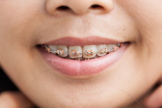Closeup ceramic and metal braces on teeth