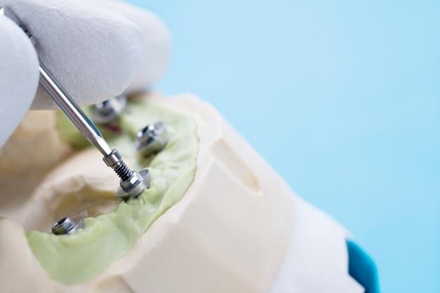 Крупный план / компоненты трансформируемого абатмента / временный абатмент для зубного имплантата / винтовой имплантат абатмента.