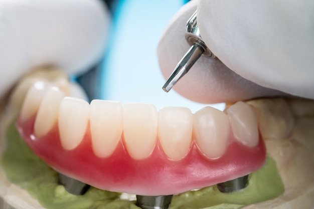 Closeup/ dental implants supported overdenture