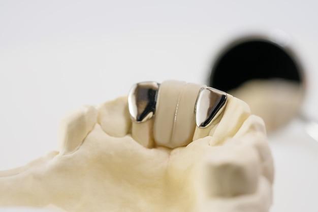 Closeup / dental maryland bridge / crown and bridge equipment and model express fix restoration.