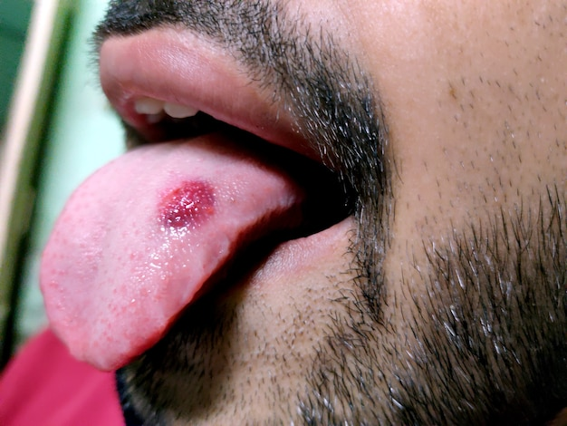 A closeup of a diseased tongue in which a red spot glosses. burning and discomfort of the tongue
