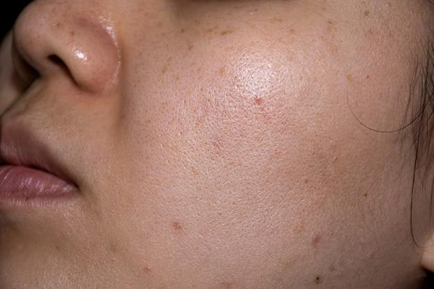クローズアップの顔の女性はそばかすの黒い斑点頬の溝のにきびと不均一な肌の色合いを示しています