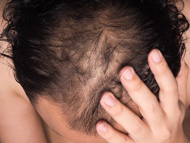 Closeup of hair lose