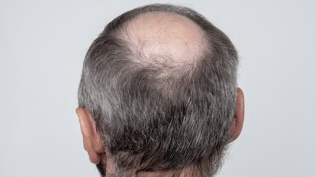 A closeup of a half-bald male head, hair transplant concept for hair loss