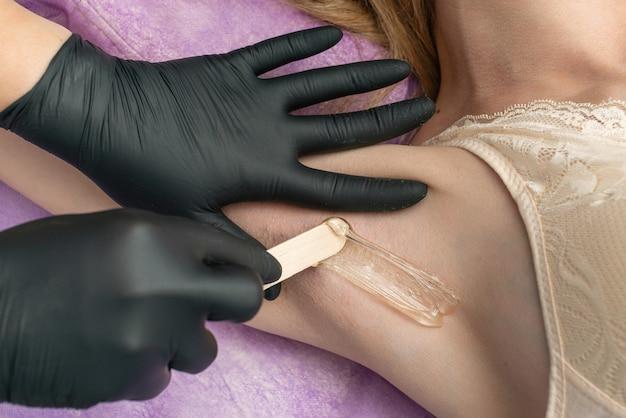 黒い手袋で脱毛マスターのクローズアップ手がクライアントの脇の下にホットワックスを適用します。