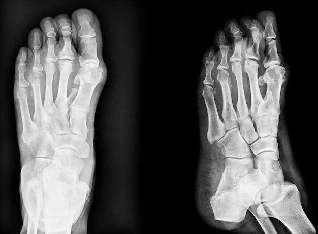 Closeup image of classic xray image of feet