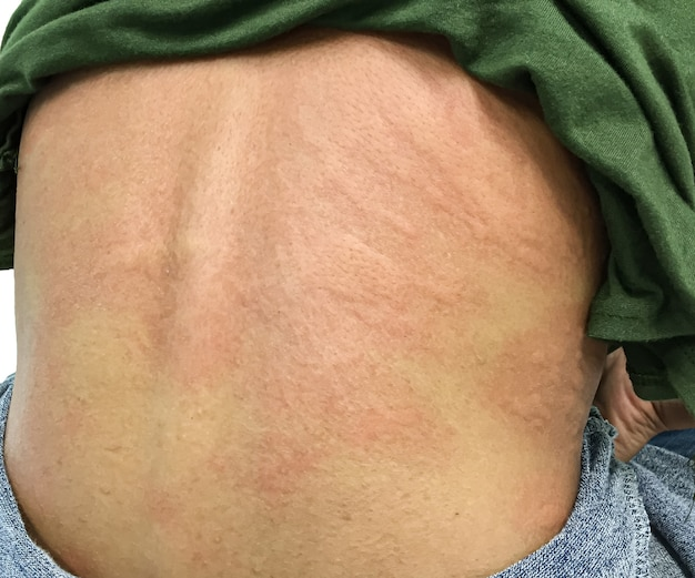 Крупным планом изображение тела самки укуса насекомого с тяжелой аллергической сыпью