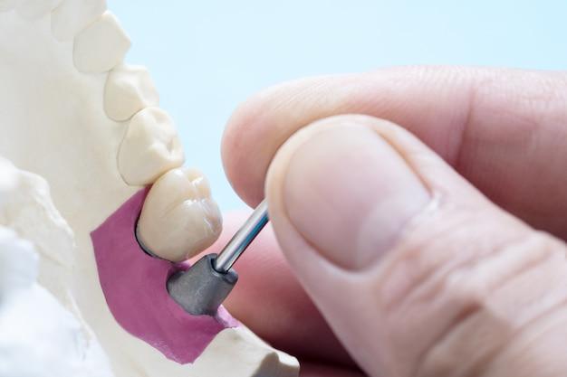 Стоматологическое оборудование для протезирования крупным планом / имплантатов или протезирование / зубная коронка и мостовая имплантация, а также экспресс-восстановление модели.