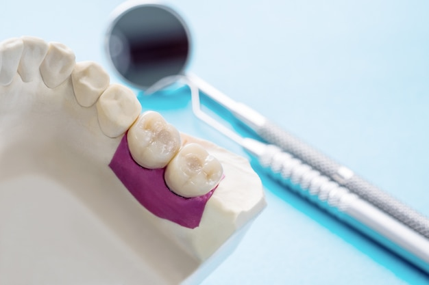 Closeup / implant prosthodontics or prosthetic / tooth crown and bridge implant dentistry equipment and model express fix restoration.