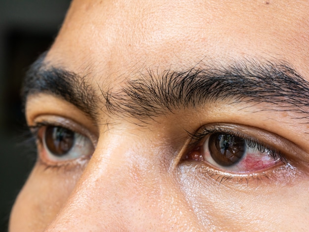 Closeup of irritated eyes of man affected by conjunctivitis