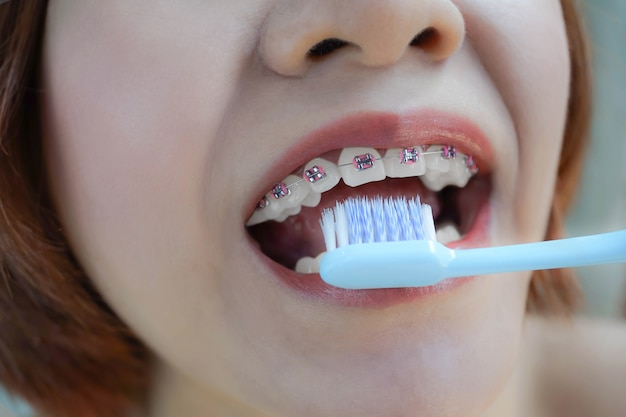 Closeup mouth with teeth braces and toothbrush