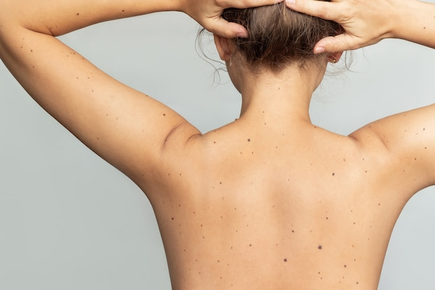 Closeup of a naked female back with a large number of moles on isolated on a gray background
