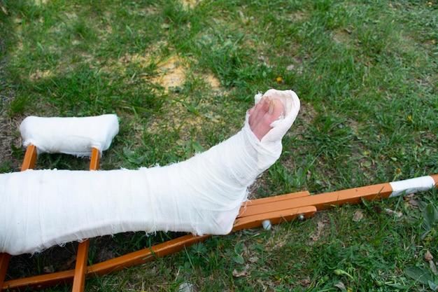 Крупным планом мужчина со сломанной ногой и костылями