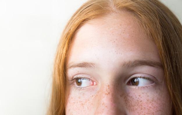 Крупным планом глаза рыжей девушки с веснушками, смотрящей в сторону на белом фоне