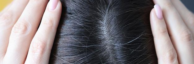 여자 머리 trichology 머리 치료 개념에 회색 머리의 근접 촬영