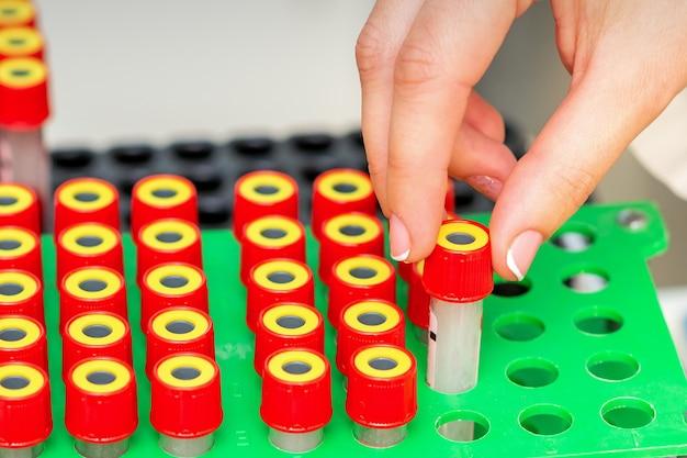 Крупный план руки техника ставит тесты пустой пробирки на стойку в лаборатории