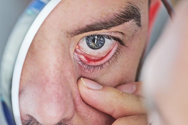 빨간색과 자극 인간의 눈의 근접 촬영입니다. 안구 건조 증상