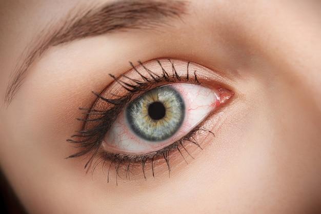 Крупным планом раздраженный красный налитый кровью глаз - конъюнктивит