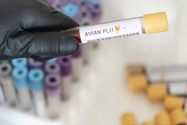 조류 독감에서 양성 혈액 샘플의 근접 촬영
