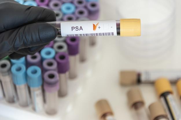 Psa에서 양성 혈액 샘플의 근접 촬영