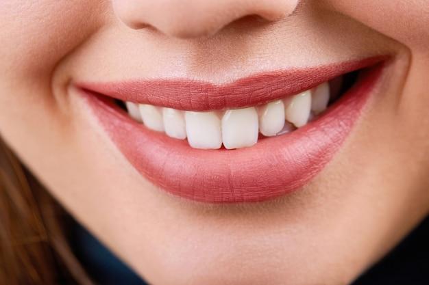 하얀 건강한 치아와 미소의 근접 촬영