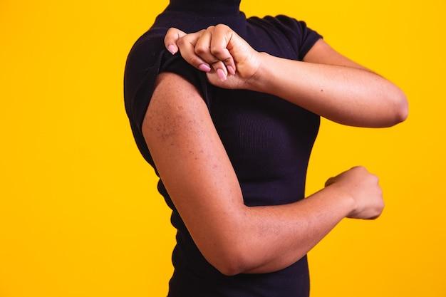 Крупным планом на руке афро женщины с аллергией.
