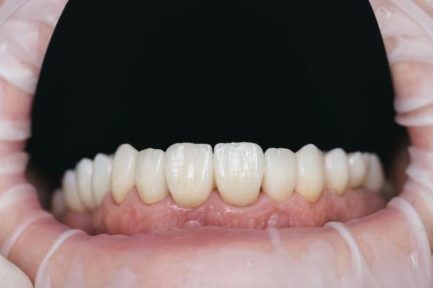 ジルコニウム人工歯のクローズアップ写真。ジルコニウムの王冠。
