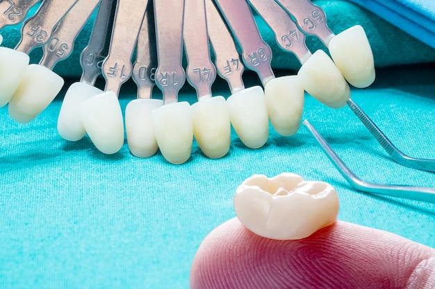 Макрофотография / протезирование или протезирование / экспресс-восстановление модели коронки и мостовидного протеза на одиночный зуб.