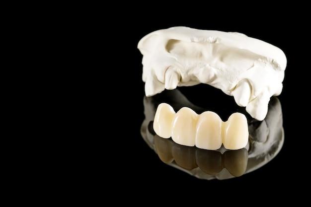 Стоматологическое оборудование для макрофотографии / протезирования или протезирование / зубная коронка и имплантат и реставрация модели express fix.