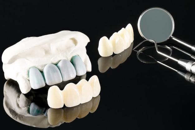 Макрофотография / протезирование или протезирование / зубная коронка и стоматологическое оборудование на имплантатах мостовидного протеза и реставрация с быстрой фиксацией модели