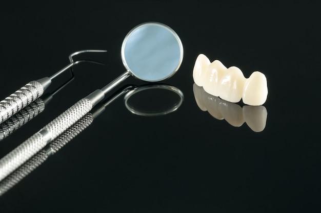 근접 촬영 / 보철 또는 보철 / 치아 크라운 및 브릿지 임플란트 치과 장비 및 모델은 수정 복원을 표현합니다.