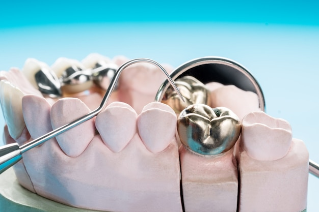 Closeup  prosthodontics or prosthetic / crown and bridge equipment and model express fix restoration.