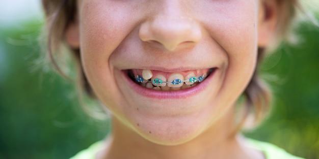 笑顔の歯列矯正器を持つ子供のクローズアップビュー。