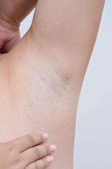 Closeup voew of woman with armpit hair, female hairy armpit,