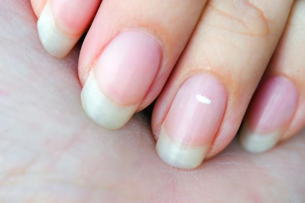 손톱에 흰 반점이나 진드기가 붙은 이 질병을 백혈병이라고 합니다