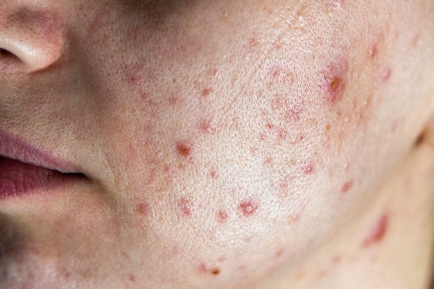 Closeup of woman face with bad skin and red acne.