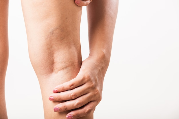 다리에 근접 촬영 여자 고통스러운 정맥류와 거미 정맥