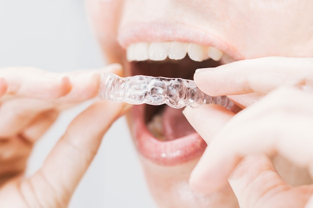 Closeup of woman's mouth putting on a transparent retainer with soft natural lighting